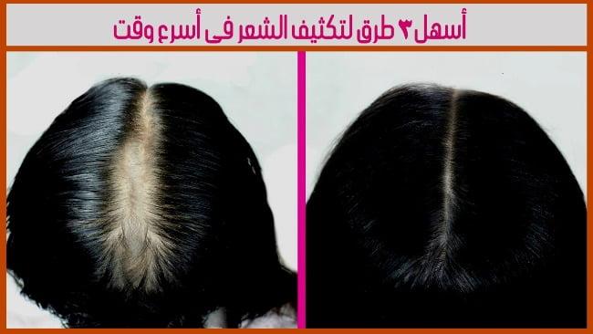 طرق لتكثيف الشعر فى أسرع وقت